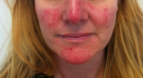 Akne vulgaris på kvinna i 40-års åldern.